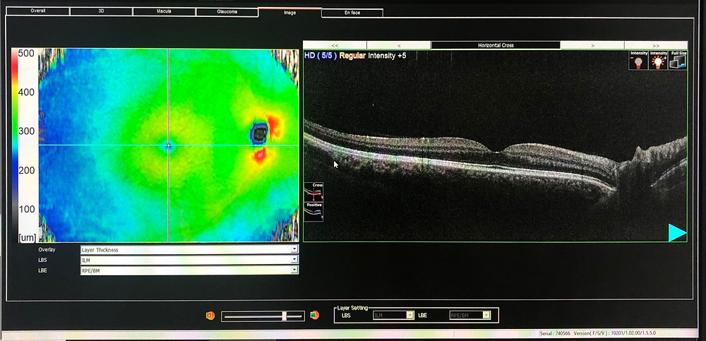 OCT health Scan showing the layers at the back of the eye