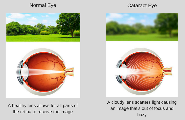 Diagram of a normal eye and a cataract eye