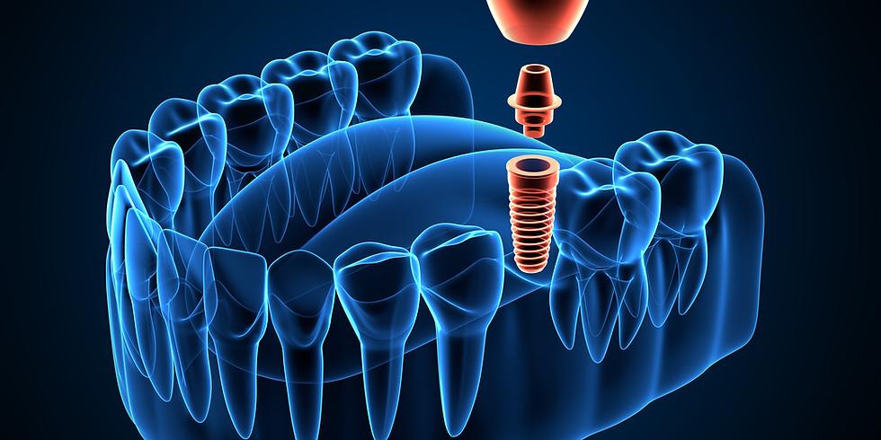Formation : Initiation à la chirurgie implantaire