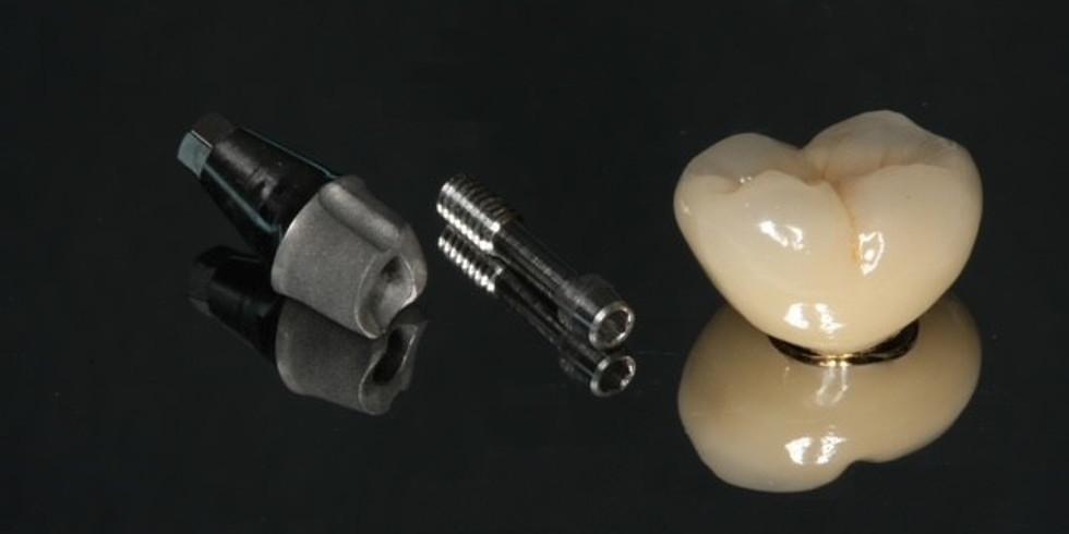 L'Implantologie clinique au quotidien : Comment maitriser la prothèse sur implants ?