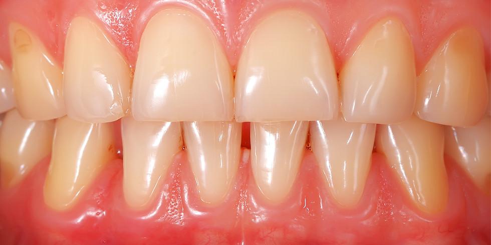 Bien maitriser les traitements non-chirurgicaux en Parodontologie