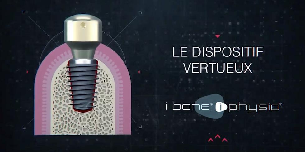 Préserver l'os et les tissus mous autour de vos implants : Le dispositif vertueux ibone iphysio