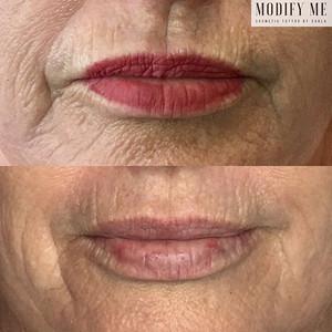 Lip & Surrounding Area - Plasma Fibroblast - 1 Treatment