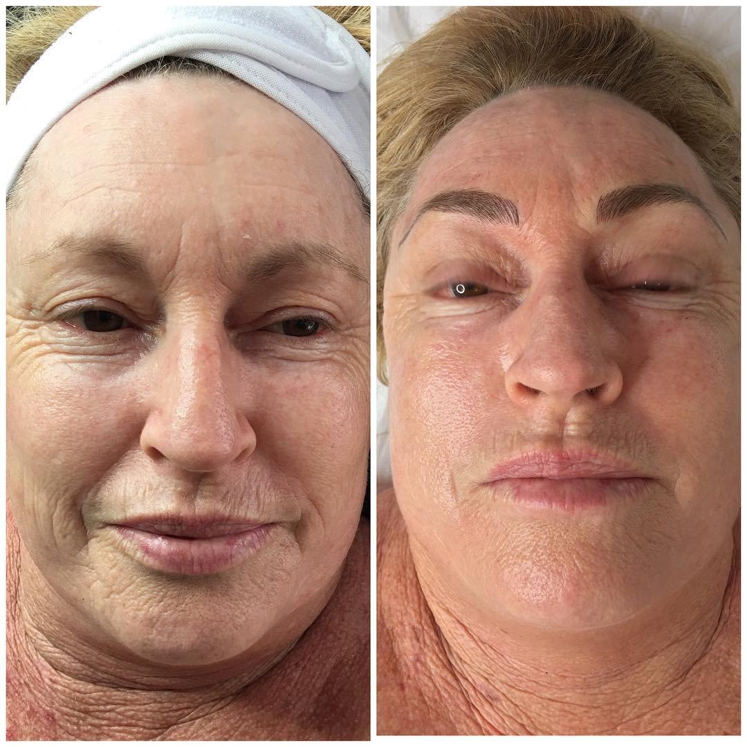 Skin Needling - Full Face