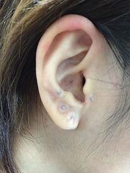 耳つぼ、耳鍼、ダイエット、マグレイン、パイオネックス、円皮鍼