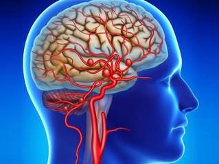 O que são os Aneurismas cerebrais?