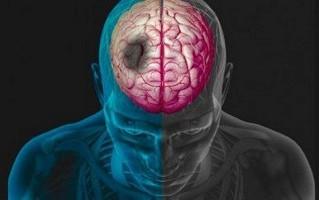 Acidente Vascular Encefálico Isquêmico em jovens