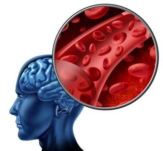 Demência Vascular