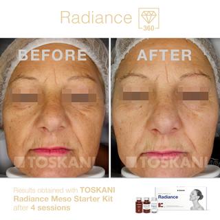 20_before&after_RadianceMesoStarterKit_4