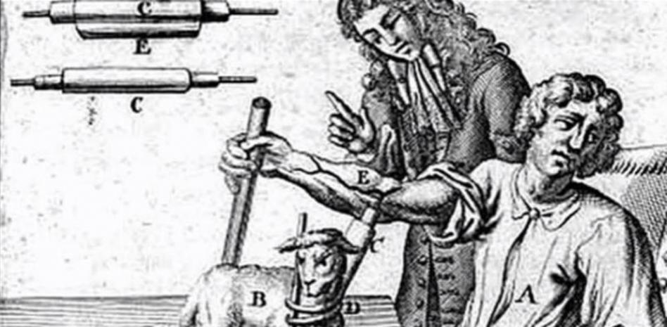 El 15 de junio de 1667 Jean Baptiste Denys trasfundió sangre de cordero a un niño de 15 años
