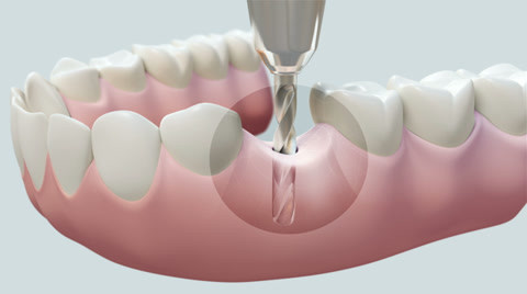 dental-implant-bright-footage-038469872_