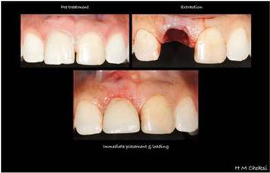 Implant case 1 day 3.jpg