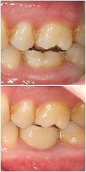 Implant case 1 day 1.jpg