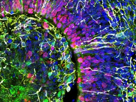 Minicérebros criado por brasileiro emite ondas cerebrais