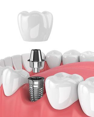 Dental implant.jpeg
