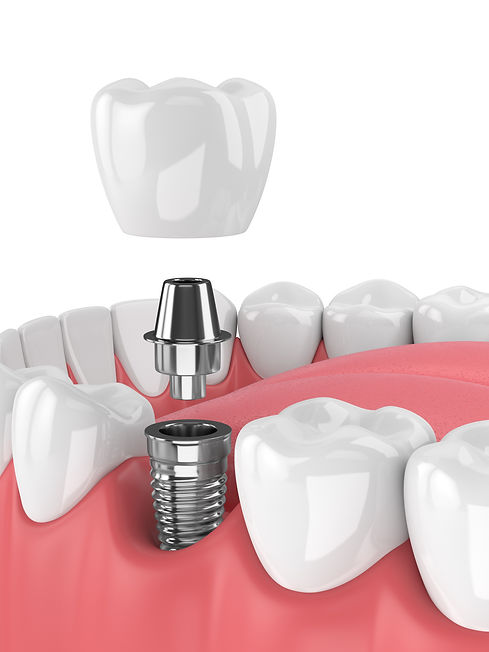 Dental implants Miranda and Sutherland S