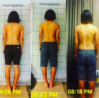 Rolfing™ Structural Integration - Cases and Results of Ten-Series Program