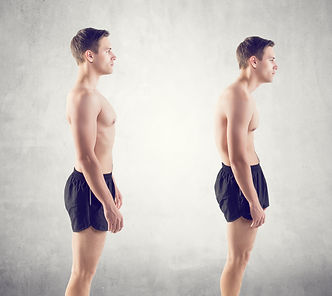 Man With Impaired Posture Position Defec