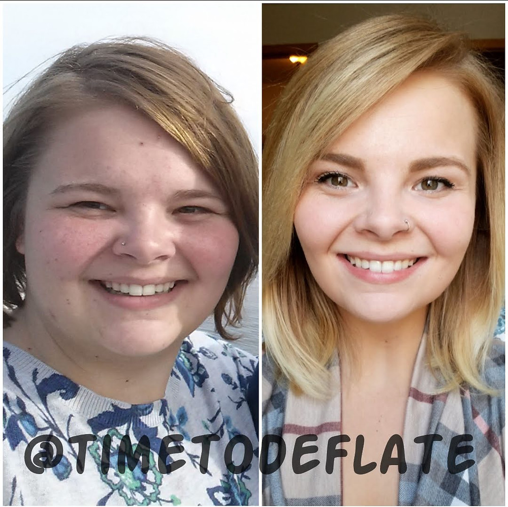 Face to face weight loss transformation
