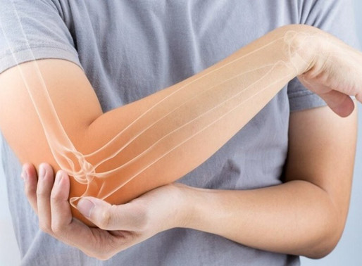 """Lateral Epicondylitis: Even Those Who Don't Play Tennis Can Get """"Tennis Elbow"""""""