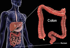 image of colon.jpg