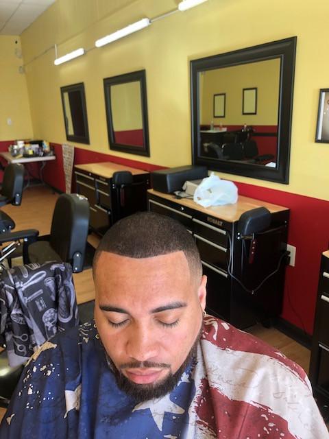Hair Resoration After
