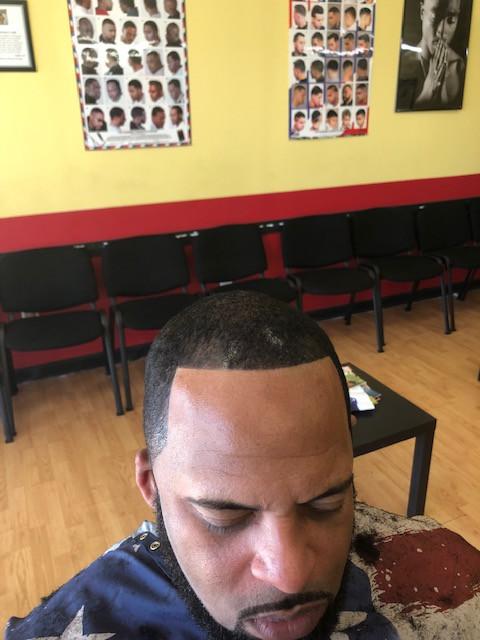 Hair Restoration After