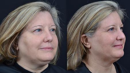 anti-aging skin treatments Dalton, Georgia