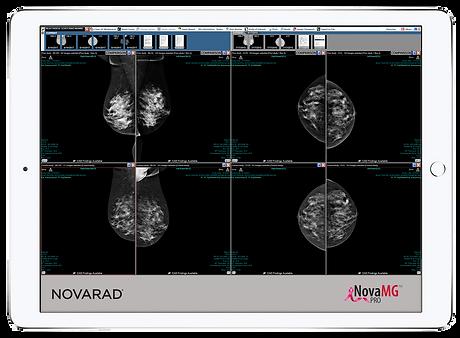 MG PRO on iPad Novarad Health Care Technology