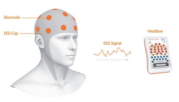 treatment for traumatic brain injuries TBIs