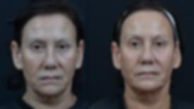 anti-aging skin treatments Acne treatment Dalton, Georgia