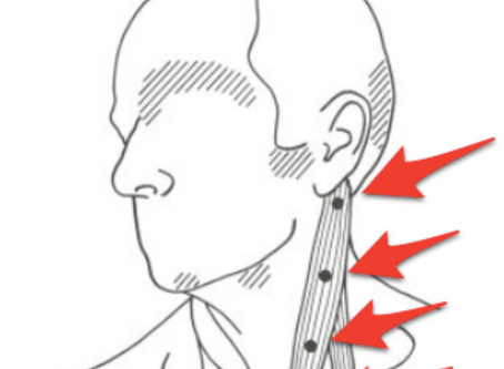 The Overlooked Culprit of Neck Pain:      The SCM