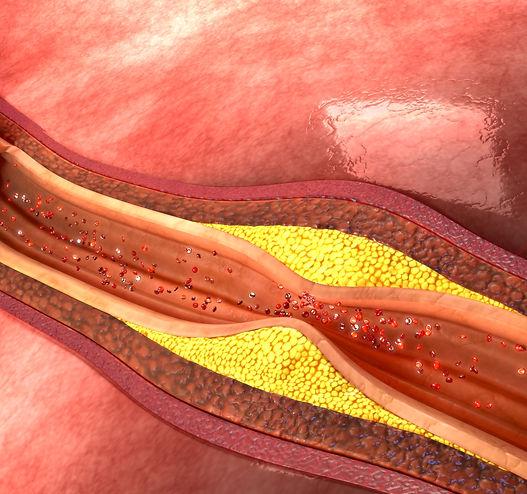 atherosclerosis.jpeg