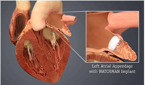 Left Atrial Appendage Occlusion Procedure (watchman)