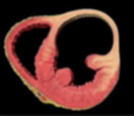 Left Ventricle aneurysm
