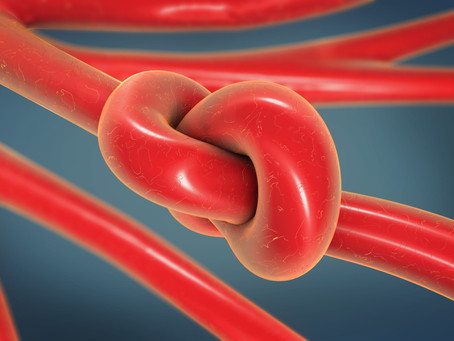 Thrombosis and Embolism