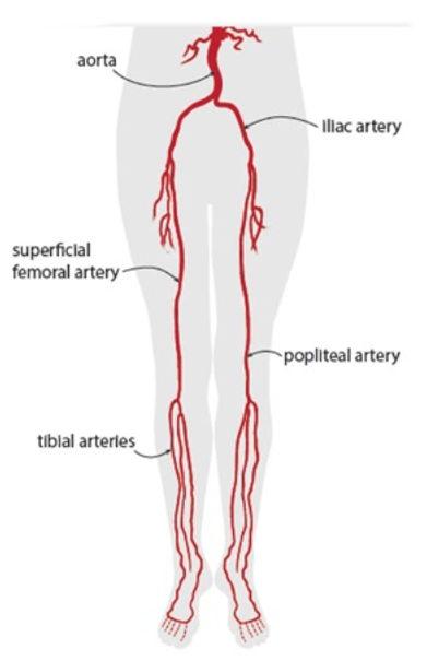 periphipheral_angiogram.jpg