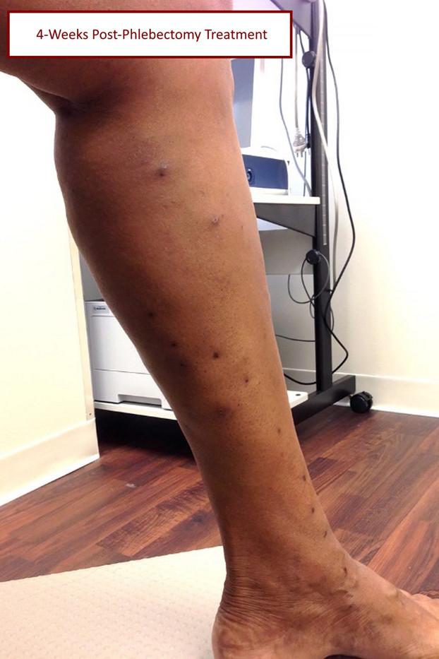 4 week post phlebectomy