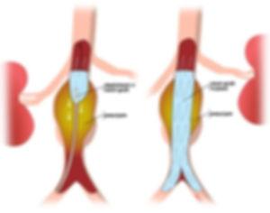 Abdominal Aorta Aneurysm stent.jpg