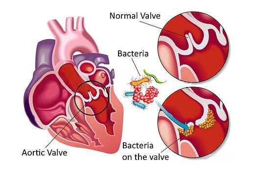 endocarditis.jpg