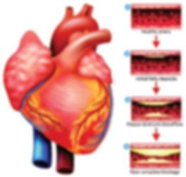 coronary_artery_disease.jpg