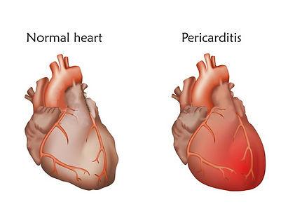 pericarditis.jpg