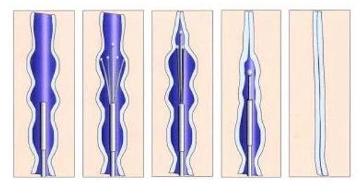endovascular_RFA2.jpg