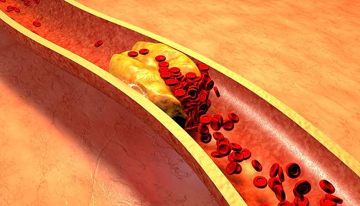 cholesterol.jpeg