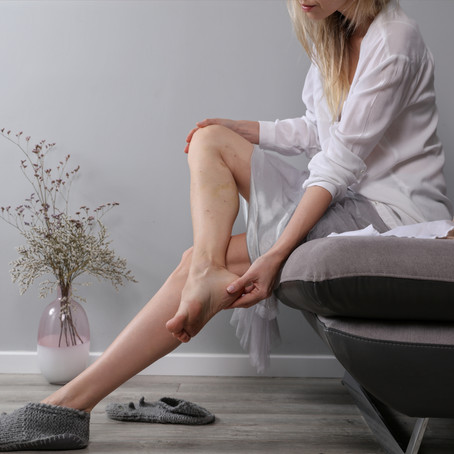 Symptoms of Varicose Veins - Mayo Clinic Article