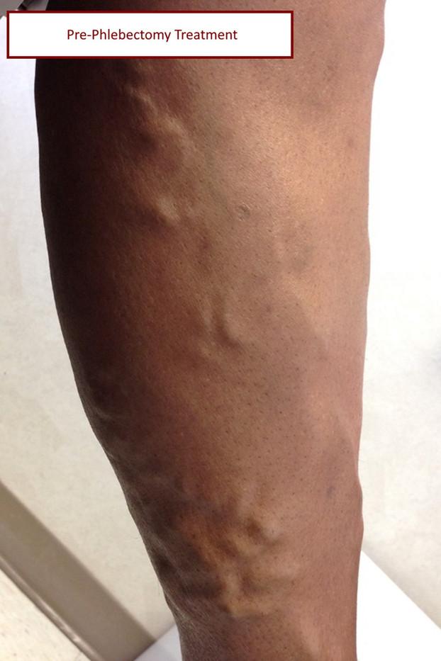 pre vein phlecbectomy with label.jpg