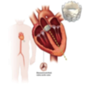 Transcatheter Aortic Valve Replacement (TAVR)