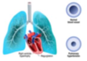 pulmonary_htn.png
