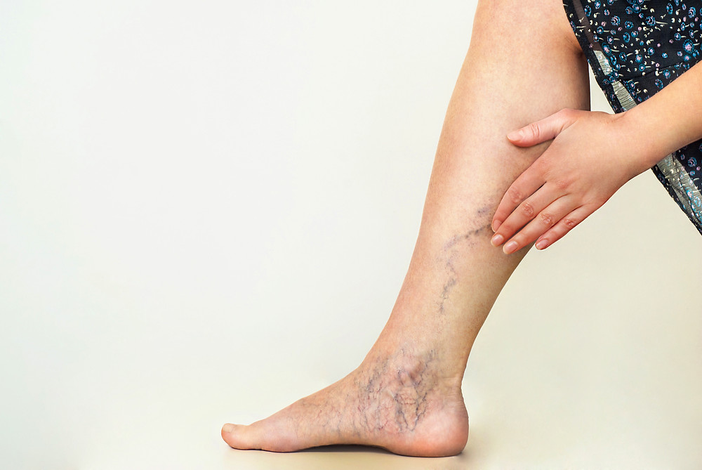 Spider Veins on a woman's leg.