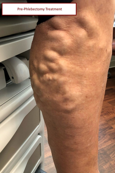 pre vein treatment with label.jpg